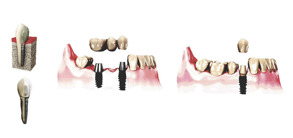 Implant Dentistry - Tooth 32 Aldinga  Beach